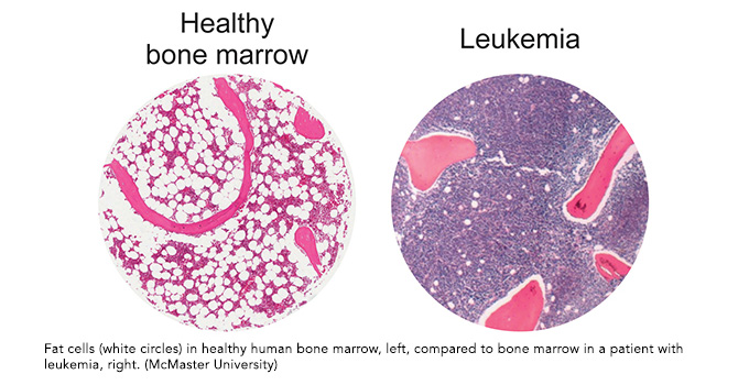 Old drug, new trick: study finds common diabetes drug could help fight leukemia