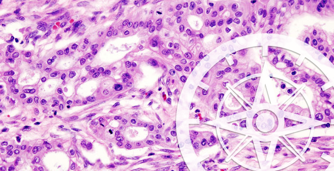 Early results from COMPASS trial demonstrate benefits of using genomic sequencing to guide treatment for pancreatic cancer