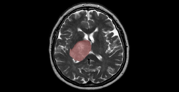 Brain cancer linked to tissue healing, study finds